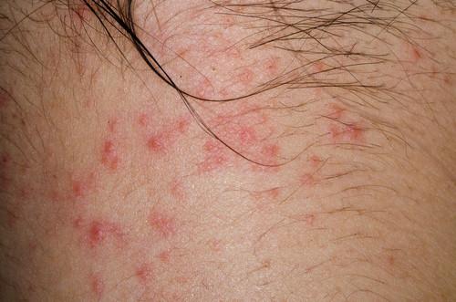 dermatita atopica - cum arata dermatita atopica