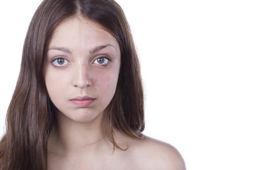 dermatita periorala - ten afecatt de dermatita periorala