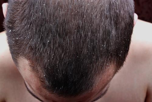 dermatita seboreica - scalp afectat de dermatita seboreica